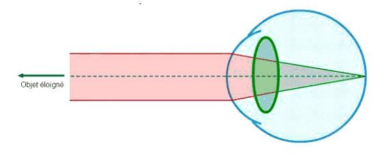 hypermetropie-2